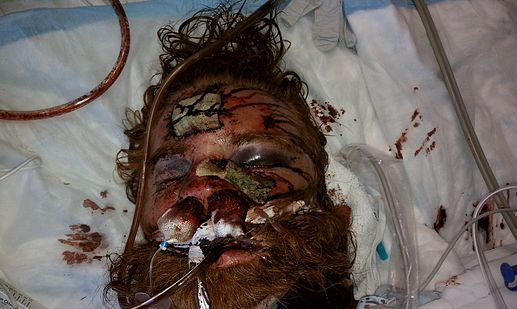 image of Kelly Thomas after police beating